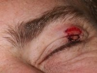My cut-up eyelid after balling with the hacks